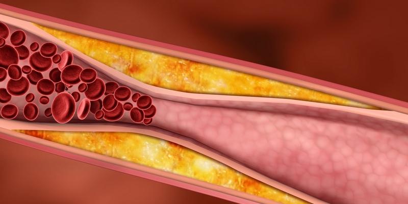 Rezultate imazhesh për kolesterol