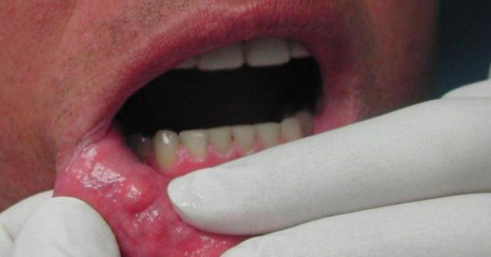 Zbulohet rreziku i ri i për kancerin e gojës